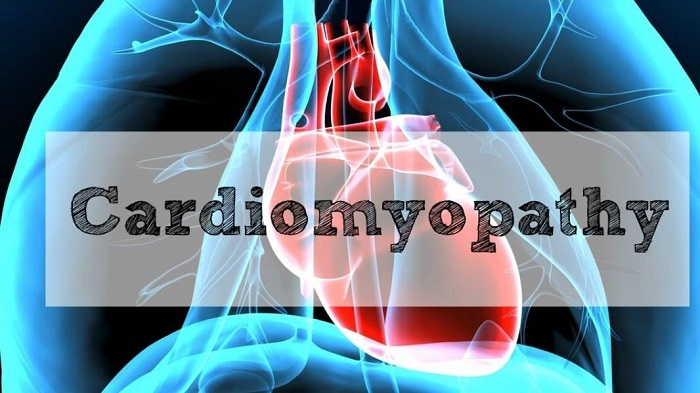 "<span class=""entry-title-primary"">Cardiomyopathy Market Size, Demand And Trends Forecast</span> <span class=""entry-subtitle"">Global Cardiomyopathy Market Report</span><span class=""rating-result after_title mr-filter rating-result-35105"" itemscope itemtype=""http://schema.org/AggregateRating"">	<span class=""mr-star-rating"">			    <i class=""fa fa-star mr-star-full""></i>	    	    <i class=""fa fa-star mr-star-full""></i>	    	    <i class=""fa fa-star mr-star-full""></i>	    	    <i class=""fa fa-star mr-star-full""></i>	    	    <i class=""fa fa-star mr-star-full""></i>	    </span><span class=""star-result"">	<span itemprop=""ratingValue"">5</span>/<span itemprop=""bestRating"">5</span></span>			<span class=""count"">				(<span itemprop=""ratingCount"">1</span>)			</span>			<span itemprop=""itemReviewed"" itemscope itemtype=""http://schema.org/Thing""><meta itemprop=""name"" content=""Cardiomyopathy Market Size, Demand And Trends Forecast"" /></span></span>"